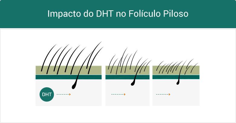 Impacto do DHT no Folículo Piloso
