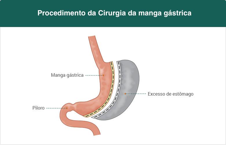cirurgia-da-manga-gastrica