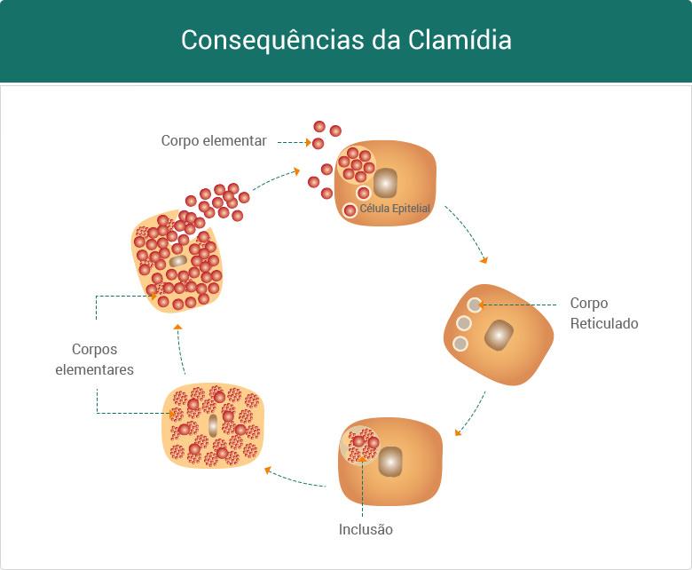 Doenças causadas por clamídia