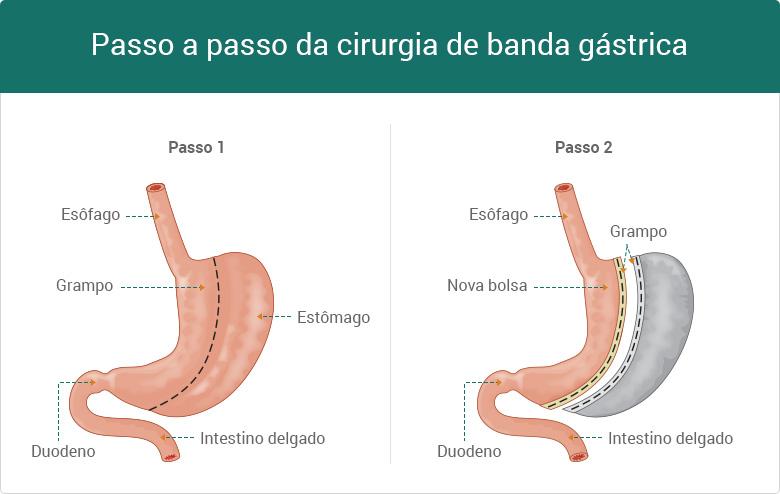 passo-a-passo-cirurgia-da-banda-gastrica