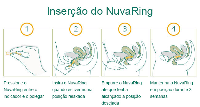 como usar anel NuvaRing
