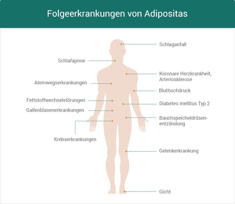 Adipositas Folgeerkrankungen Fettleibigkeit Übergewicht Diät Krebs Schlafabnoe Schlafanfall Bluthochdruck Diabetes