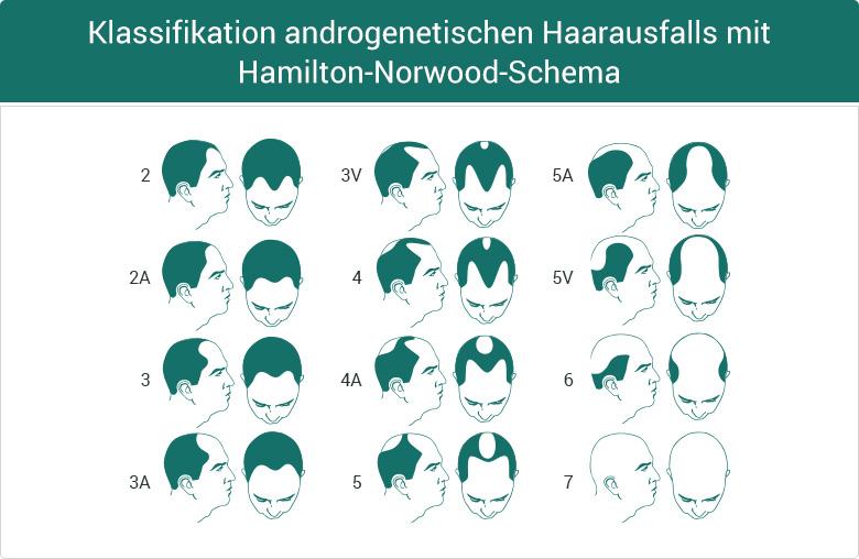 Propecia Finasterid Haarausfall Schema Glatze Geheimratsecken Klassifikation männlich Kategorisierung