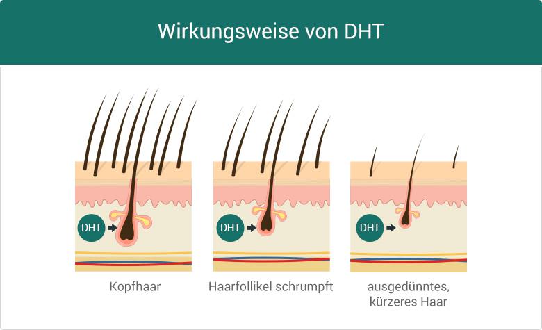 Wirkung DHT Haarfollikel Propecia Finasterid Haarausfall Alopezie