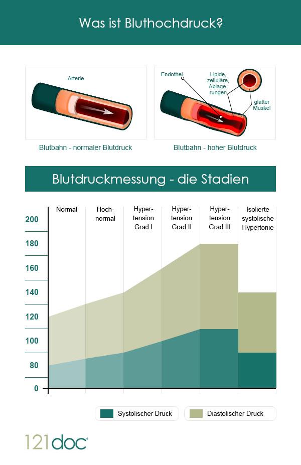 bluthochdruck-stadien_1