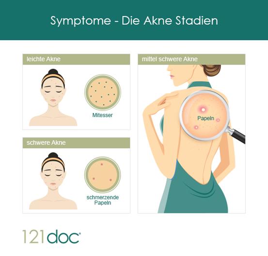 Akne Symptome