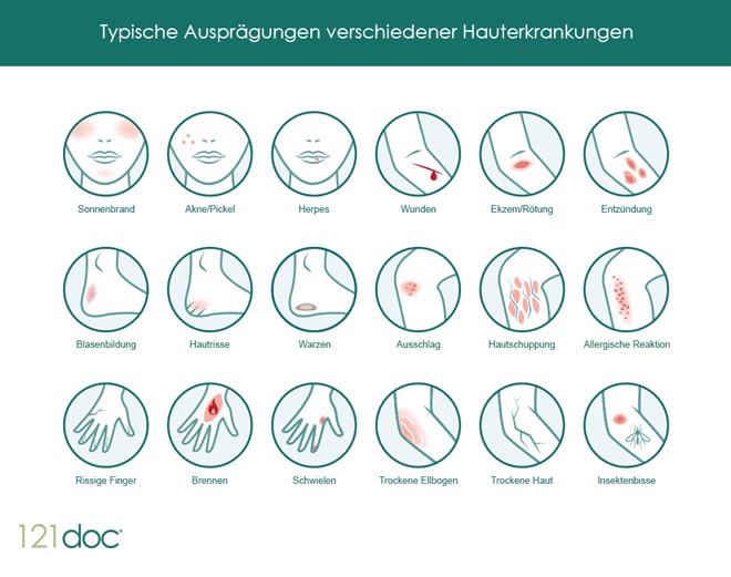 hauterkrankungen symptome