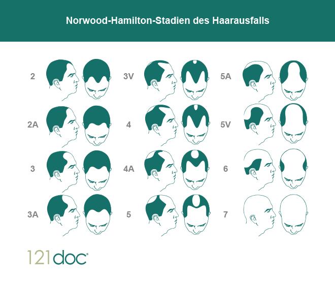 norwood hamilton stadien haarausfall