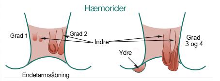 Grader af hæmorider