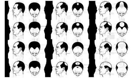 Baldness Pattern