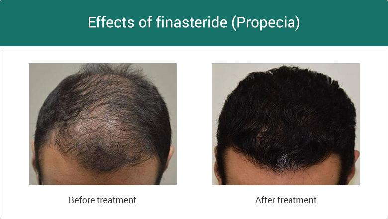 Effects of Finasteride