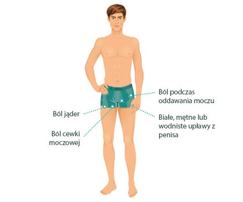 Grafika przedstawiająca objawy chlamydii u mężczyzn