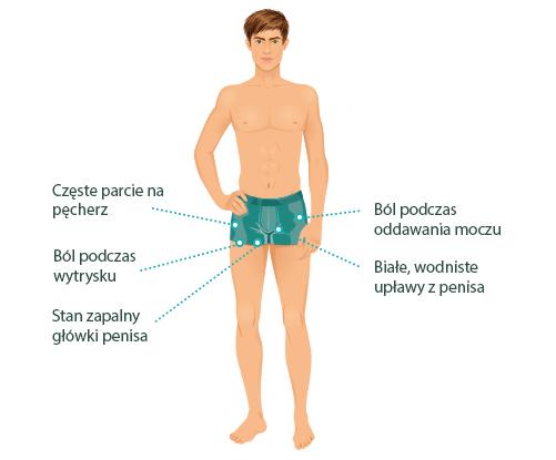 Grafika ilustrująca objawy rzęsistkowicy u mężczyzn