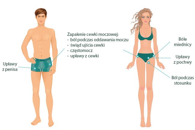 Grafika przedstawiająca objawy mykoplazmy u kobiet i mężczyzn