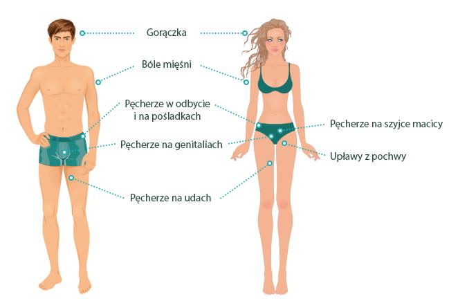 Grafika przedstawiająca objawy opryszczki narządów płciowych u mężczyzn i kobiet