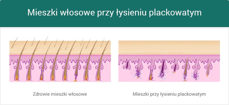 Porównanie miekszów włosowych - zdrowie i łysienie plackowate