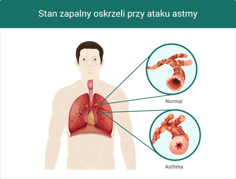 Stan zapalny oskrzeli przy ataku astmy - grafika