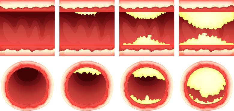 Grafika przedstawiająca cholesterol na ścianach tętnic