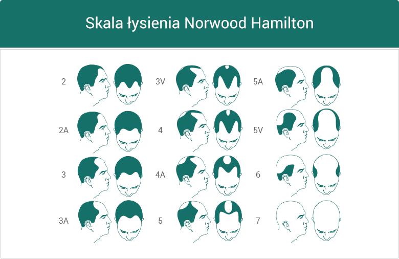 Skala łysienia Norwood Hamilton - grafika