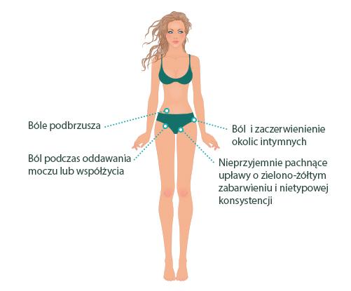 Grafika ilustrująca objawy rzęsistkowicy u kobiet