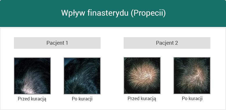 Wpływ finasterydu (Propecii)