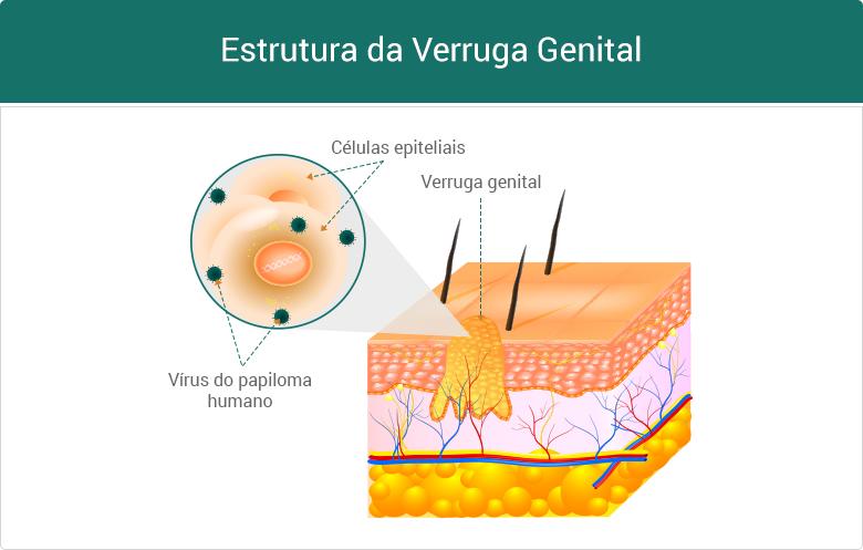 Estrutura da Verruga Genital